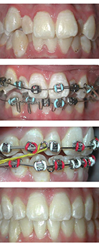 orthodontic classes