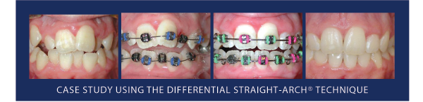 Academy of Gp Orthodontics Case Study